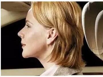 """你听说过开车有种""""挥鞭伤""""吗?严重的话可能会瘫痪!开车的必看"""